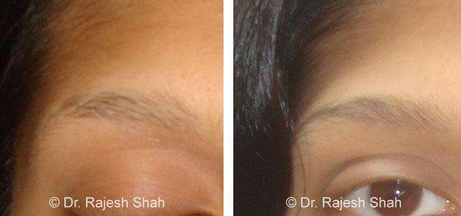 ALOPECIA AREATA homeopathic medicines case photos