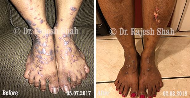Lichen Planus homeopathic medicines case photos