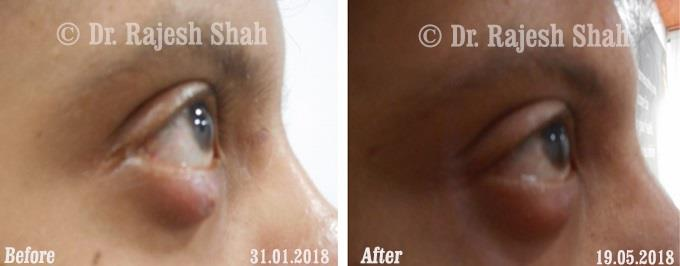 Chalazion homeopathic medicines case photos