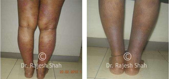 Psoriasis homeopathic medicines case photos