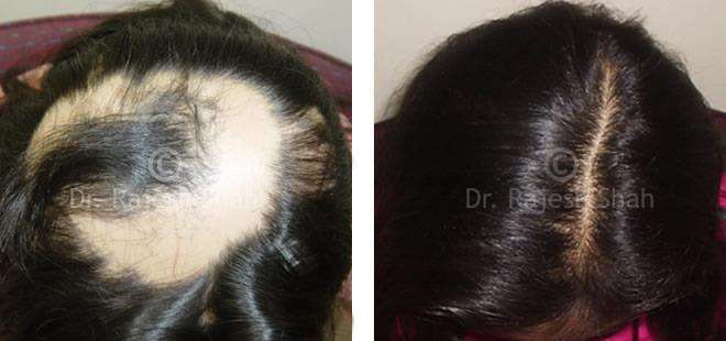 Hair Fall homeopathic medicines case photos