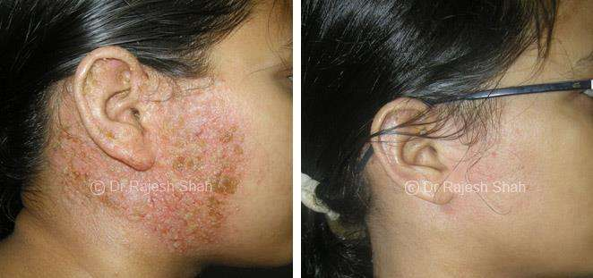 Eczema homeopathic medicines case photos