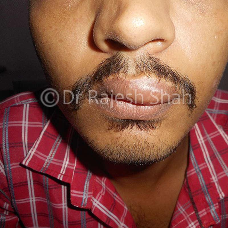 Urticaria-on-lips