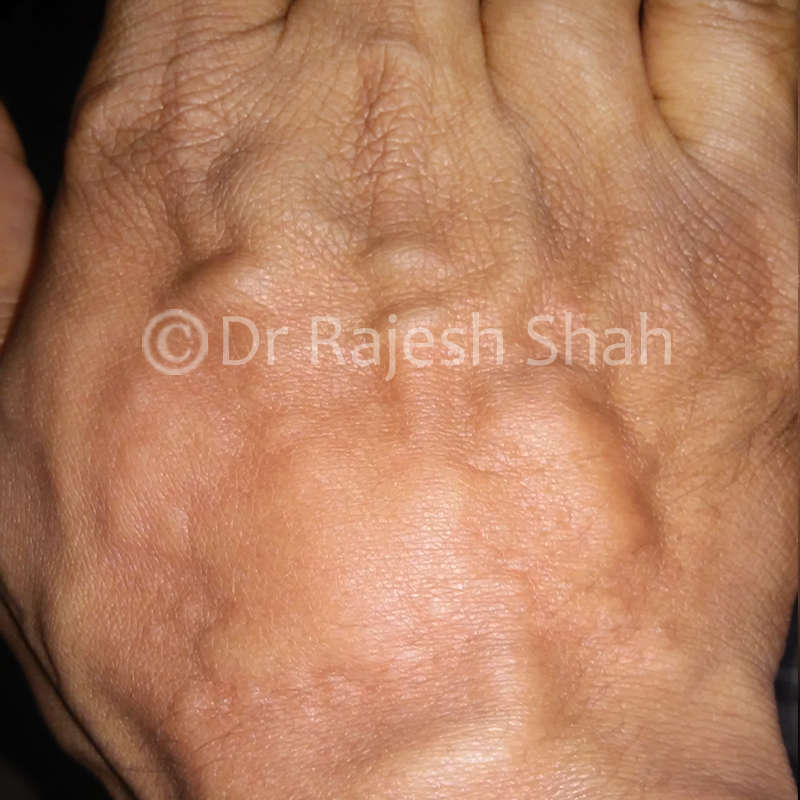 Urticaria-on-upper-  hand