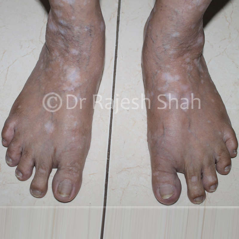 Vitiligo spots